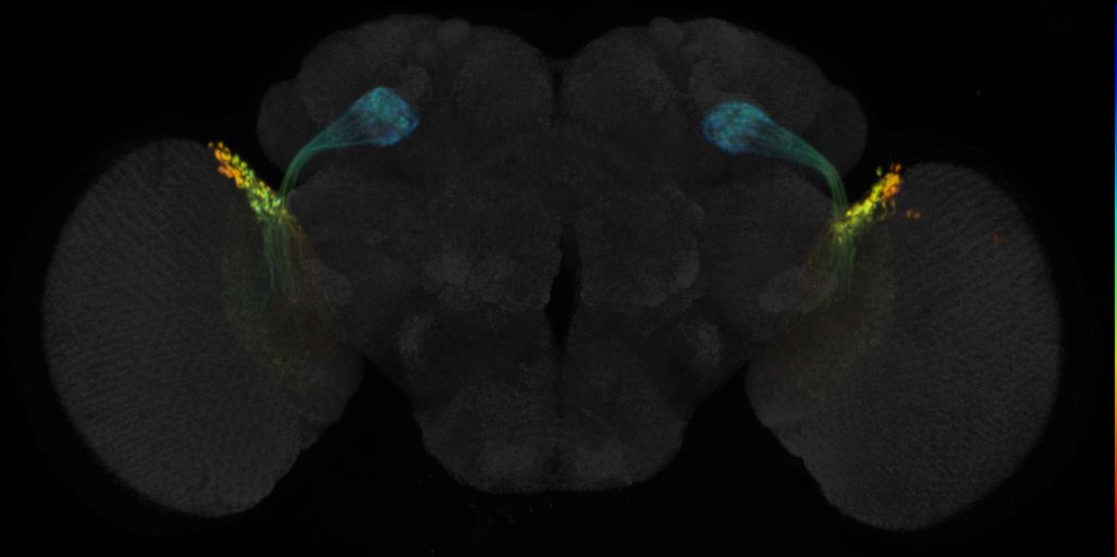 P{R22D06-GAL4.DBD} ∩ P{R35D04-p65.AD} expression pattern in adult brain on Virtual Fly Brain